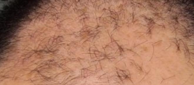 rimedi diradamento dei capelli