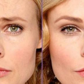Antes y después del uso del Botox