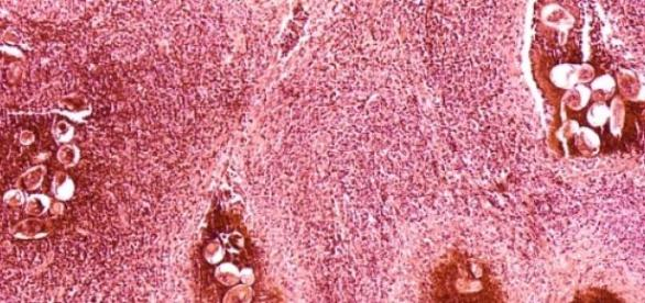 Este parásito mata a unas 200.000 personas al año