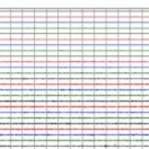 Seismic graph of July 11th Quake