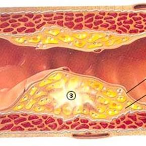 Blocked arteries can cause stroke or heart attack