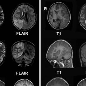 La epilepsia afecta el cerebro de la persona