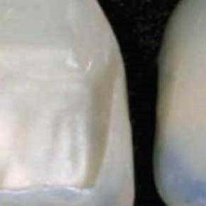 La ortodoncia por cuenta propia no es recomendable
