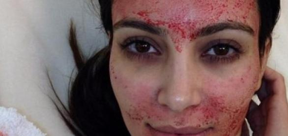 The Vampire Facial that's sucking A-lister blood
