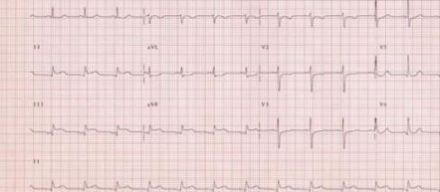 Electrocardiograma que indica un infarto