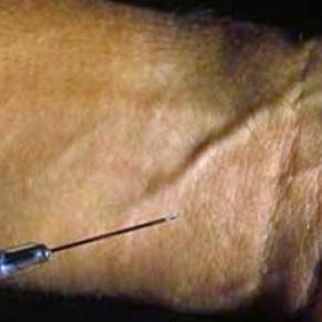 27 contagiados de VIH por agujas infectadas