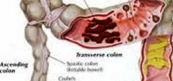 Jelito grube - często narażone na nowotwór