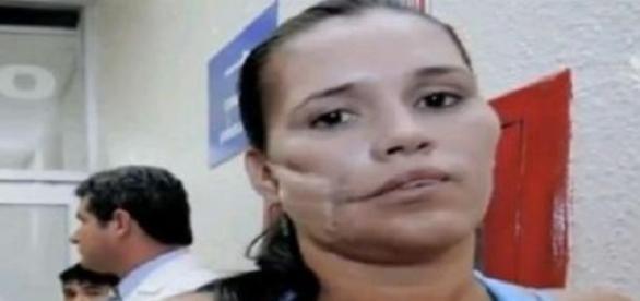 Femeia care a șocat medicii