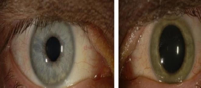 Ebola cambia il colore degli occhi del medico sopravvissuto - Colore degli occhi diversi ...