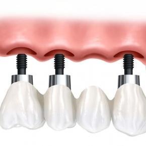 Implantes dentales y dientes sanos
