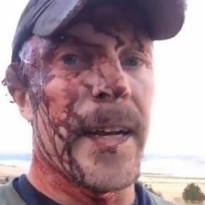 Todd Orr a supraviețuit după ce a fost atacat de un grizzly de două ori în aceeași zi