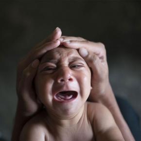 Efectul virusului: copil cu microcefalie