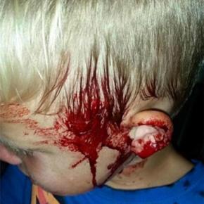 Un băiețel a fost mușcat de un piton de cap