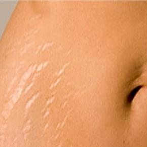 how to avoid pregnancy stretch marks naturally