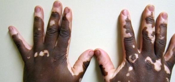 Example of vitiligo on African American hands