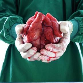 Transplante de corazón en México. Foto Quo
