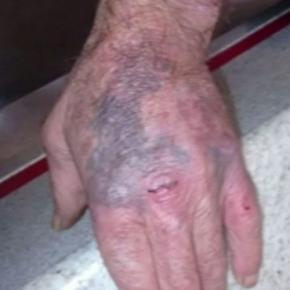 Idoso foi agredido e teve traumas nas mãos (Foto: RBS TV)
