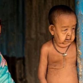 Băiețelul care suferă de două boli cumplite, Progeria și Cutis Laxa. Foto: Cover Asia Press / Qamruzzaman