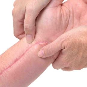 Prevenção e tratamento de cicatrizes