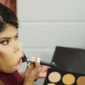 Esta chica con un tumor facial quiere cambiar el concepto de belleza.