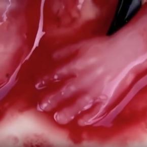 Tak wygląda proces aborcji, sami oceńcie czy to człowiek czy nie.
