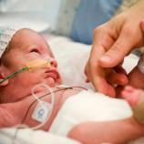 Hay que estar muy atentos en los primeros días del bebé