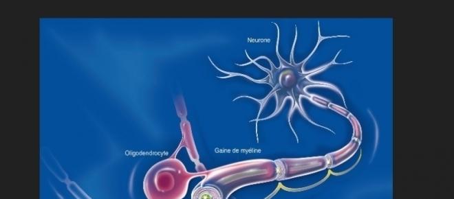Soigner la sclérose en plaque ou le vieillissement cognitif avec la testostérone