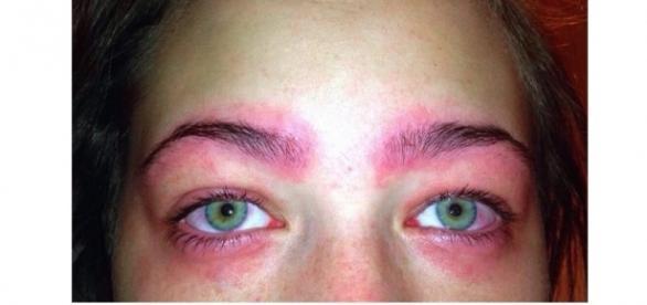 Cette Australienne a failli devenir aveugle à cause d'un produit de beauté