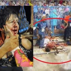 Mulher fica ferida após ser esmagada