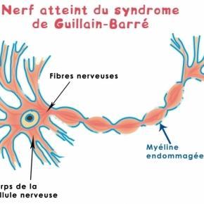 Le syndrome de Guillain-Barré.
