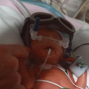 The challenges for premature babies. Image source:myleftbehind.files.wordpress.com