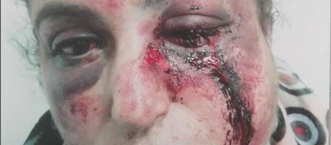CHOC : Fatna, tabassée par son mari après un mariage refusé