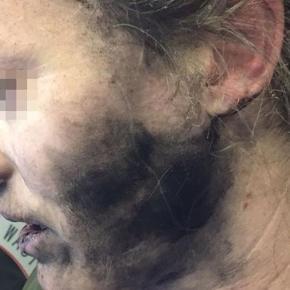 Headphone batteries explode, injures passenger on flight to ... - hindustantimes.com
