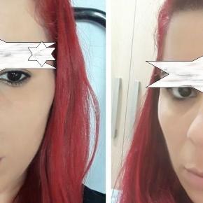 Mulher faz sobrancelha definitiva, mas o resultado não agradou