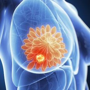 Tumore al seno, scoperta proteina in grado di limitare la crescita ... - improntaunika.it