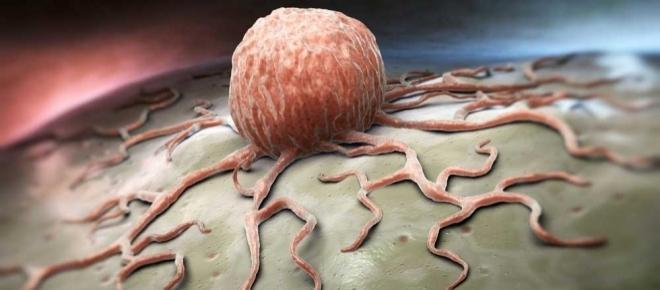 Emergenza tumori nel Salento, ecco i 'bio-killer'