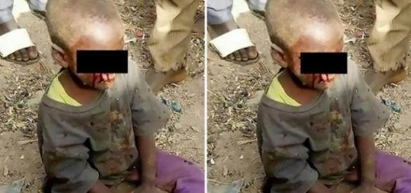 Criança tem olhos arrancados por mulher