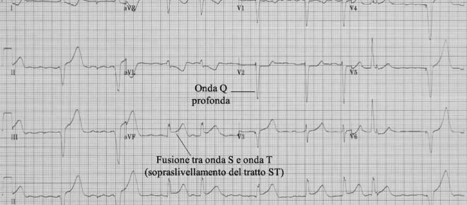 Ora è più facile e veloce diagnosticare un infarto