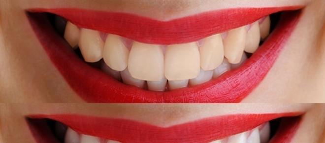 Tips para tener una sonrisa blanca y limpia