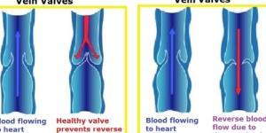 Le vene varicose hanno una genesi multifattoriale ma ancora non è stato individuato il meccanismo con cui si originano.