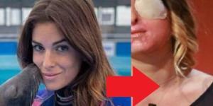 Modelo é atingida por ácido - Imagem/Google