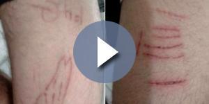 Adolescente aceitou um dos desafios e fez cortes nos braços (Foto: Arquivo pessoal)