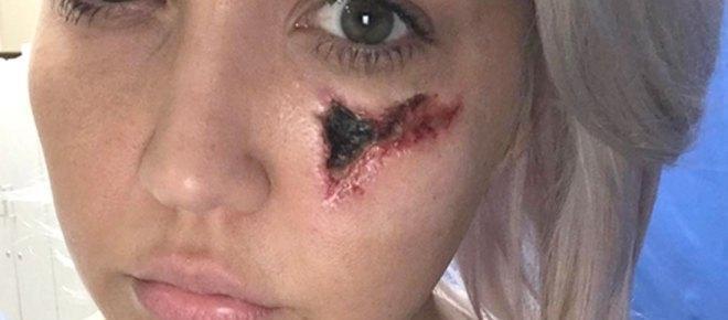 Meghan Linsey, cantante di The Voice USA deturpata dal morso del ragno violino