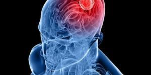 10 consigli per far un buon uso del cellulare e ridurre il rischio tumore