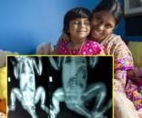 Veja como está a menina de Bangladesh que nasceu com três pernas após a cirurgia