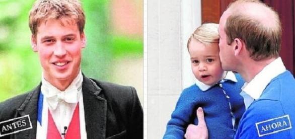 El Príncipe Guillermo de Inglaterra con su hijo, aunque la foto recuerda, de paso, que padece alopecia.