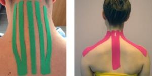 L'applicazione di cerotti elasticizzati può alleviare i dolori da sindrome dolorosa miofasciale cervicale.