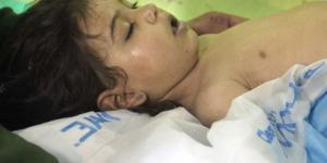 Syria attack survivors describe chemical bombs falling from sky ... - cnn.com