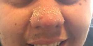 Come eliminare i punti neri sul naso semplicemente: la ricetta di Jacob