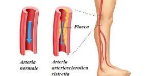 Mangiare frutta e verdura tutti i giorni migliora la circolazione del sangue nelle arterie della gamba riducendo il rischio del PAD.